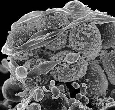 Methicillin-resistant Staphylococcus Poster by Science Source