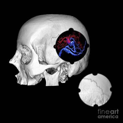 3d Color Enhanced Image Of Skull And Avm Poster by Medical Body Scans