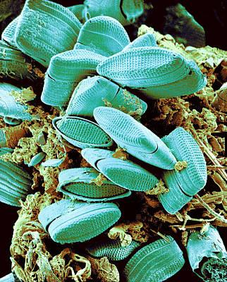 Diatoms, Sem Poster