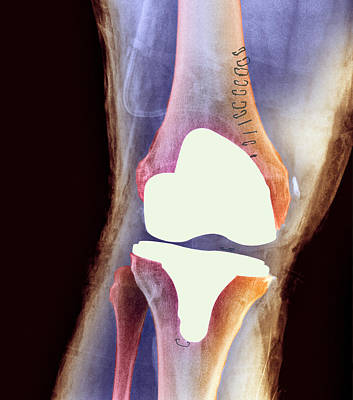 Knee Joint Prosthesis, X-ray Poster