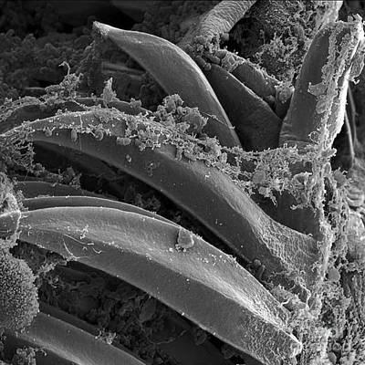 Yersinia Pestis Bacteria, Sem Poster by Science Source
