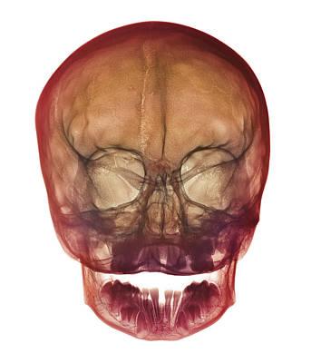 Child's Skull Poster