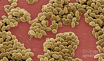 Anthrax Bacteria, Sem Poster by Science Source