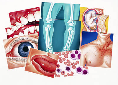 Artwork Of Disorders Due To Vitamin Deficiencies Poster by John Bavosi