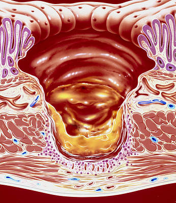 Artwork Showing Close-up Of Gastric Ulcer Poster