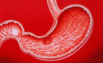 Artwork Showing Gastric Ulcer Poster