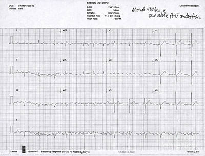 Atrial Flutter, Ecg Poster by Science Source