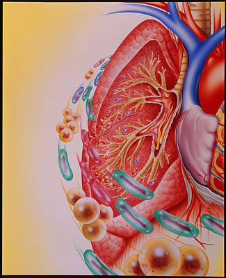 Bacterial Infection Of Lung Poster