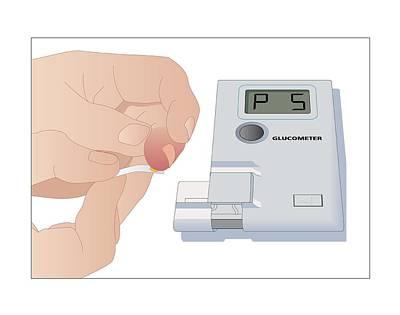 Blood Glucose Test, Artwork Poster by Peter Gardiner