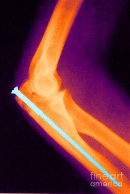 Broken Arm With Metal Pin, X-ray Poster