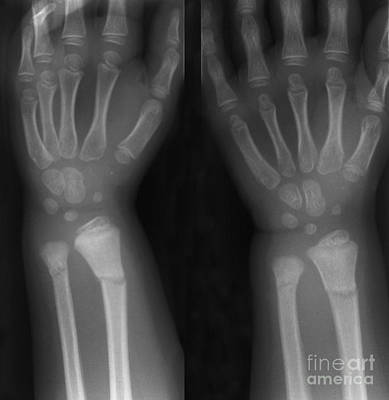 Broken Wrist Poster by Ted Kinsman