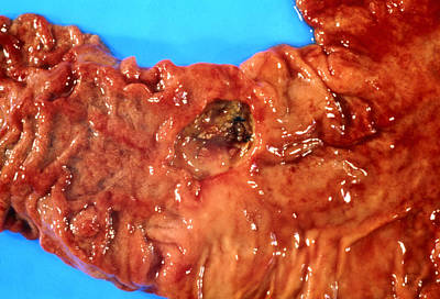 Close-up Showing A Duodenal Ulcer Poster by Dr. E. Walker