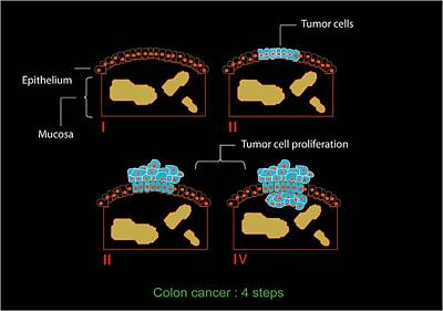 Colon Cancer Stages, Diagram Poster by Francis Leroy, Biocosmos