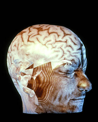 Coloured 3-d Ct Scan Of A Head With Healt Poster
