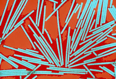 Coloured Tem Of Tobacco Mosaic Viruses (tmv) Poster