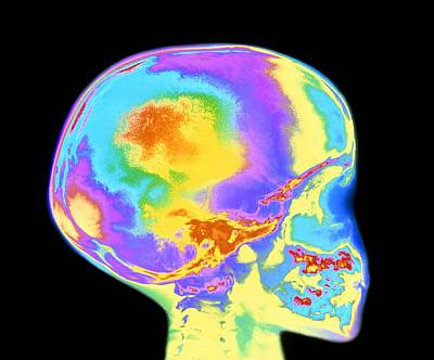 Coloured X-ray Of Child's Skull And Tooth Eruption Poster