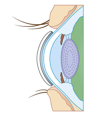 Cross Section Biomedical Illustration Of Soft Contact Lens On Eye Poster