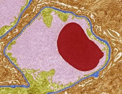 Glomerular Capillary, Tem Poster by Steve Gschmeissner