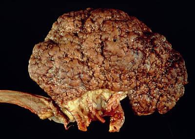 Gross Specimen Of Kidney Scarred By Hypertension Poster by Dr. E. Walker
