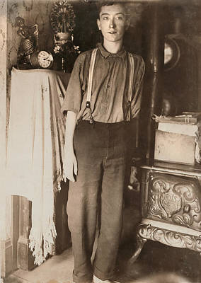 Harry Mcshane, Age 16, Had His Arm Poster