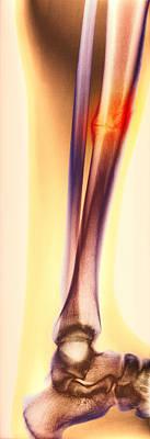 Healed Leg Break, X-ray Poster by