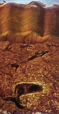 Human Skin, Light Micrograph Poster