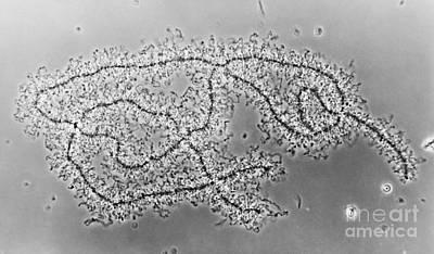 Lampbrush Chromosomes Newt, Lm Poster