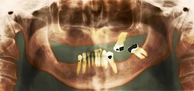 Loss Of Teeth, X-ray Poster