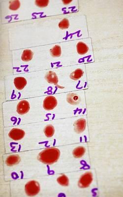 Medical Blood Analysis Poster