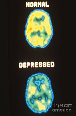 Pet Scans, Deoxyglucose Study Poster by Science Source