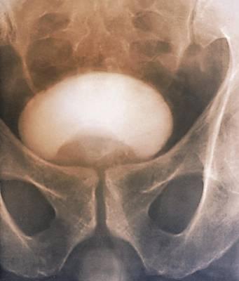Prostate Disorder, X-ray Urogram Poster by Zephyr