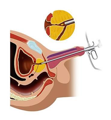 Prostate Gland Surgery, Artwork Poster