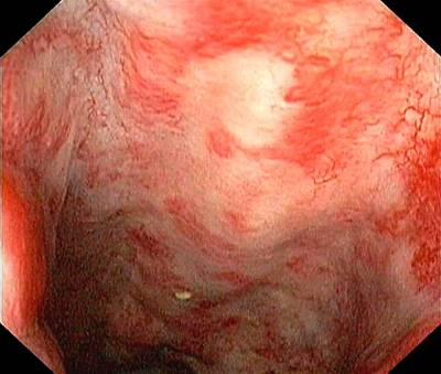 Rectal Damage From Radiation Therapy Poster