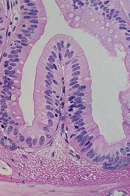 Simple Columnar Epithelium, Goblet Cells & Villus Poster