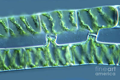 Spirogyra Zygospores 2 Of 4 Poster by M. I. Walker