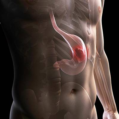 Stomach Cancer, Artwork Poster by Sciepro