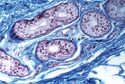 Sweat Gland In Skin Poster