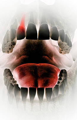 Toothache Poster