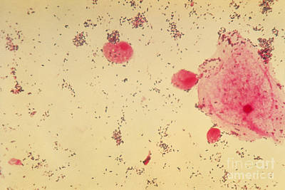 Trichomonas Vaginalis, Lm Poster by American Society for Microbiology