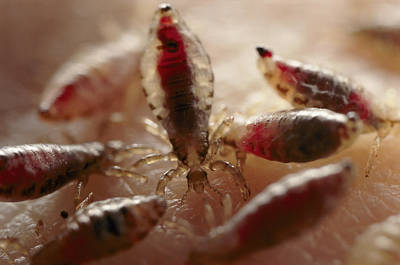 View Of Body Lice Pediculus Humanus Poster