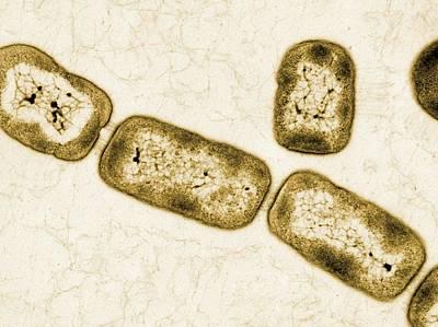 Vitreoscilla Bacteria, Tem Poster by Peter Bond, Em Centre, University Of Plymouth