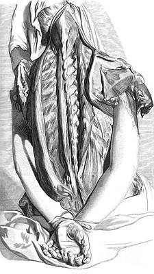 Anatomia Humani Corporis, Table 30, 1690 Poster