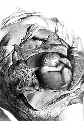 Anatomia Humani Corporis, Table 56, 1690 Poster
