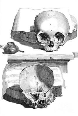 Anatomia Humani Corporis, Table 89, 1690 Poster
