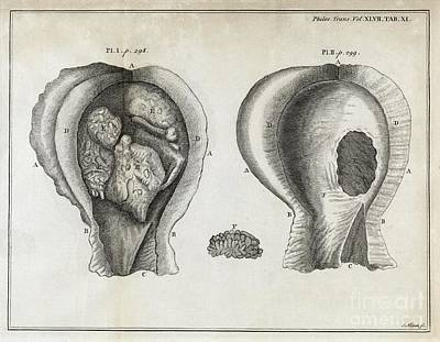 Fungal Bladder Infection, 18th Century Poster