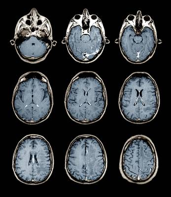 Normal Brain, Mri Scans Poster by Zephyr