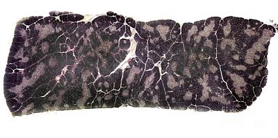 Thymus Gland Tissue, Light Micrograph Poster by Dr. Keith Wheeler