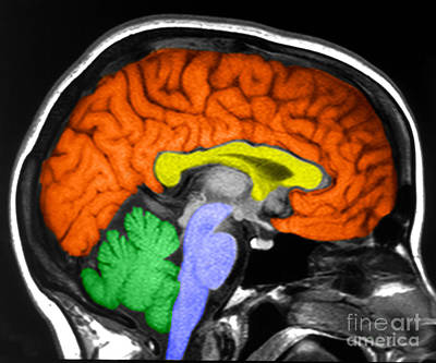 Human Brain Poster by Ted Kinsman