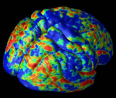 Human Brain Variation Poster by Arthur Togaucla