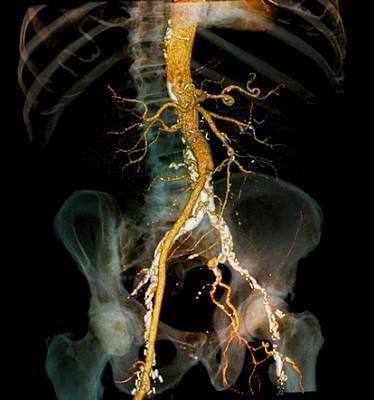 Arteritis, 3d Ct Scan Poster